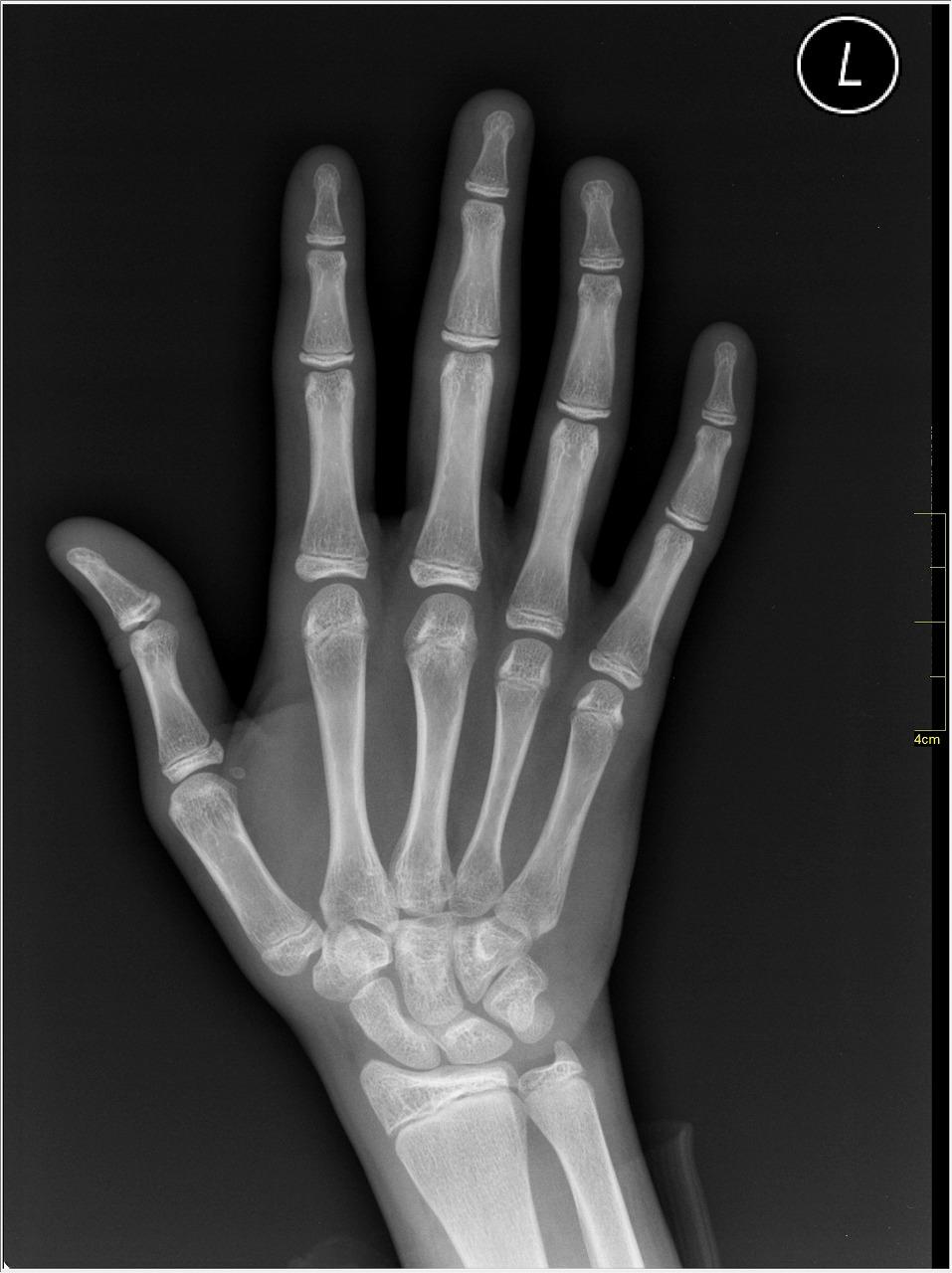 X-ray_of_Hand.jpg